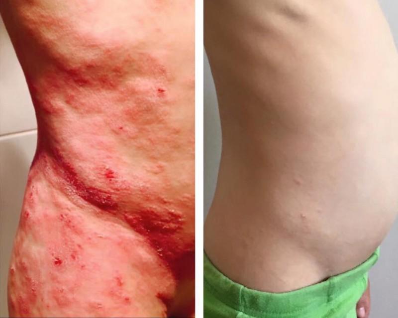 dermatiit 3