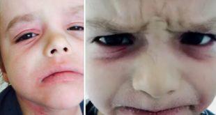 põletikuline dermatiit