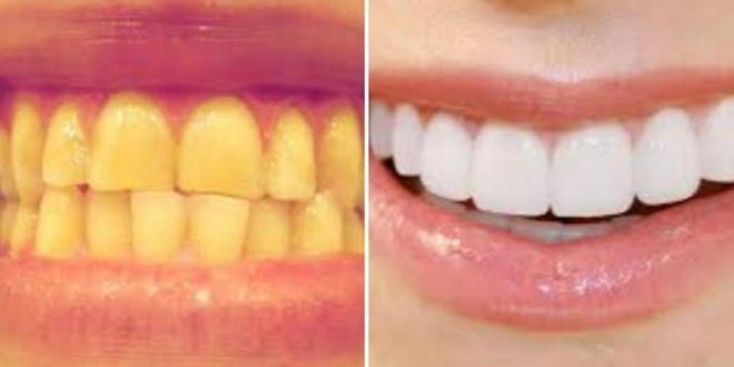 tulede poleerimine hambapastaga